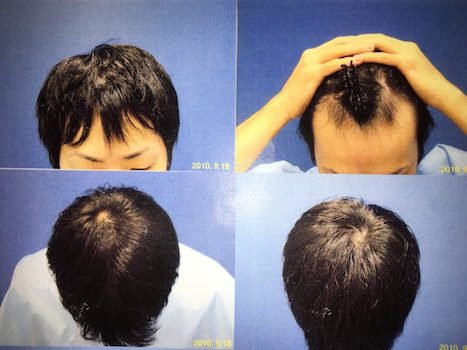 2010年9月18日(初診時。前髪アウトの若ハゲ。。)