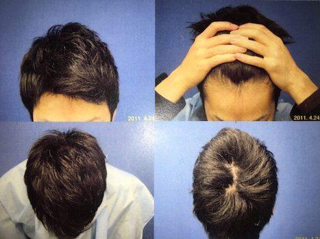 2011年4月24日(髪にコシが出てきた。頭頂部は単なる寝癖です)