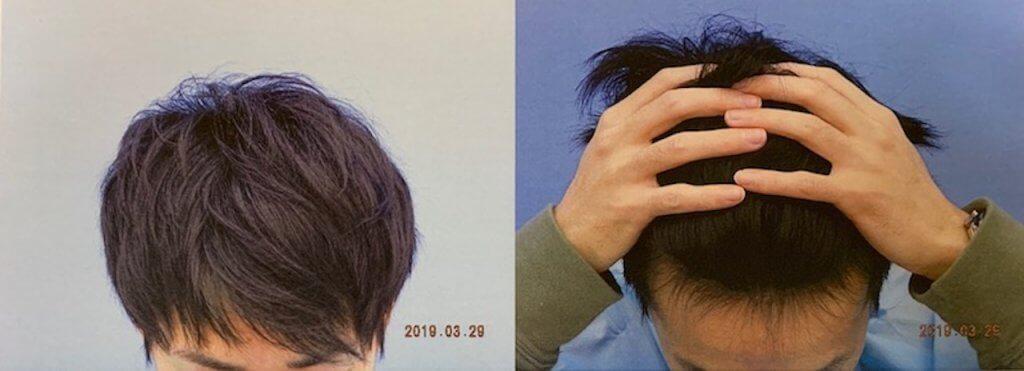 脇坂クリニック診察時生え際写真3/29/2019