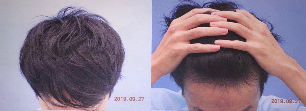 20代AGA治療後の頭皮